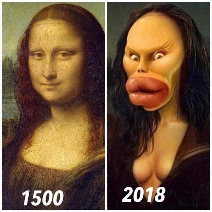 Chân dung người phụ nữ ở thế kỷ 16 (Nàng Mona Lisa) điển hình cho nét đẹp tự nhiên của người phụ nữ, còn phụ nữ ở những năm gần đây, đã đánh mất nét tự nhiên vì quá phụ thuộc đến mức lạm dụng vào phẩu thuật thẩm mỹ...